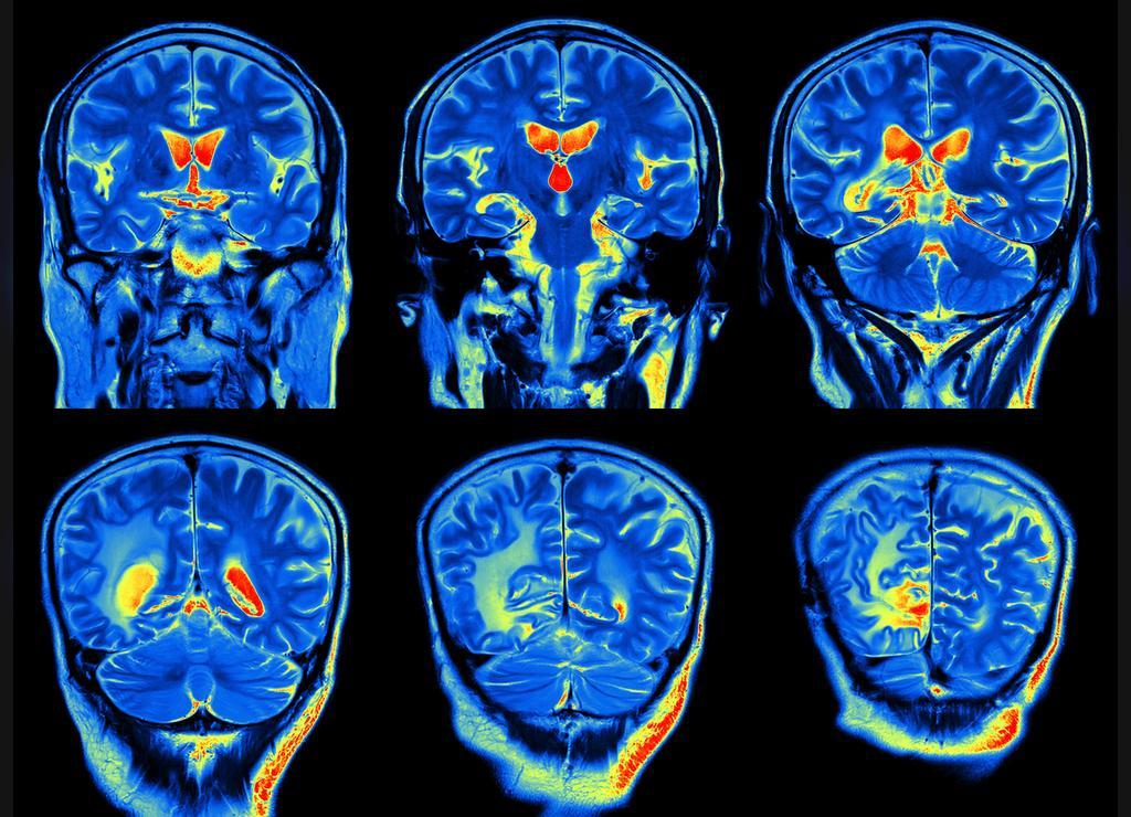 بیماری آلزایمر و اهمیت ارزیابی بالینی جامع