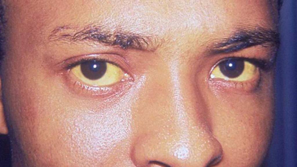 عوارض جانبی مینوسایکلین