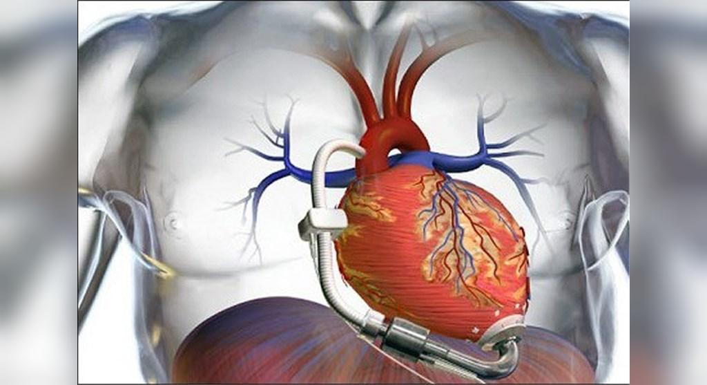 دیگوکسین در کنار داروهای دیگر جهت درمان نارسایی قلبی استفاده می شود
