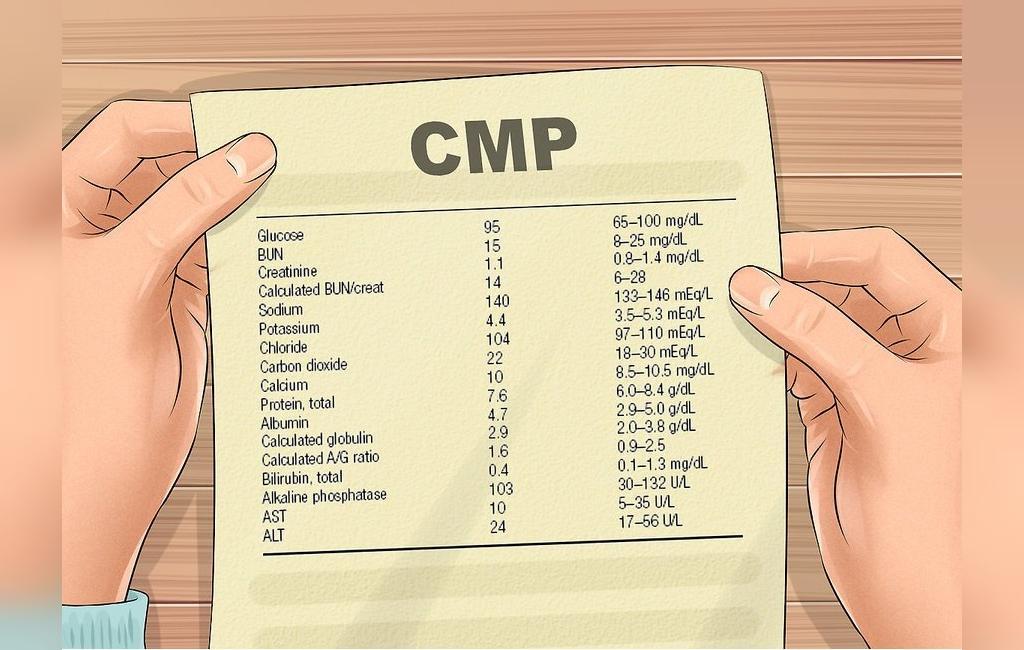 چیست CMP