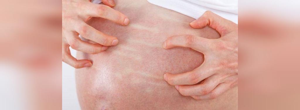 علل خشکی پوست در بارداری