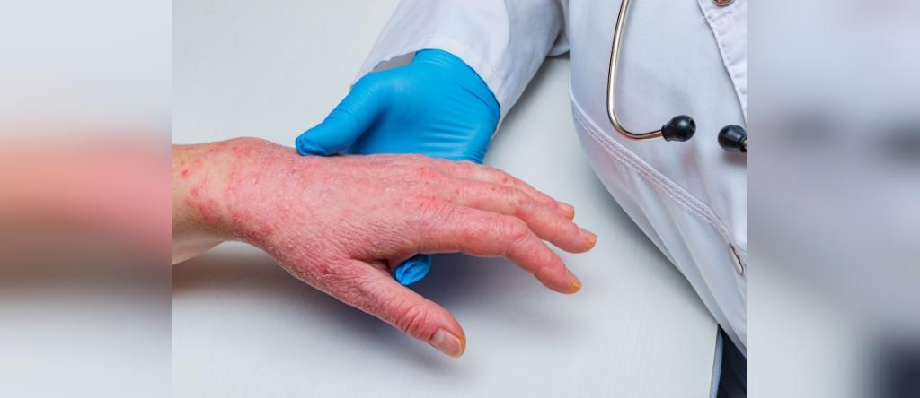 روش درمان بیماری پمفیگوئید