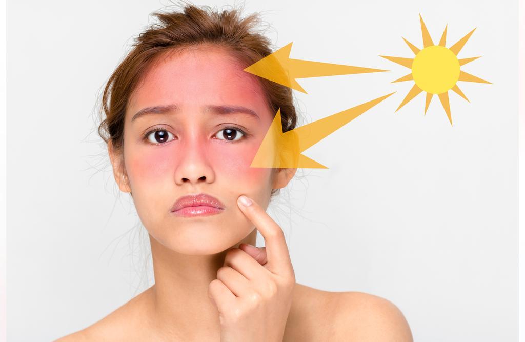 درمان آفتاب سوختگی با زنجبیل