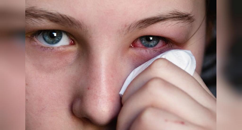 علائم هپاتیت ب و سی پس از ریختن مایع منی در چشم