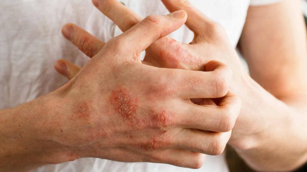 اگزما؛ علائم و درمان های خانگی و گیاهی ساده و مؤثر اگزما