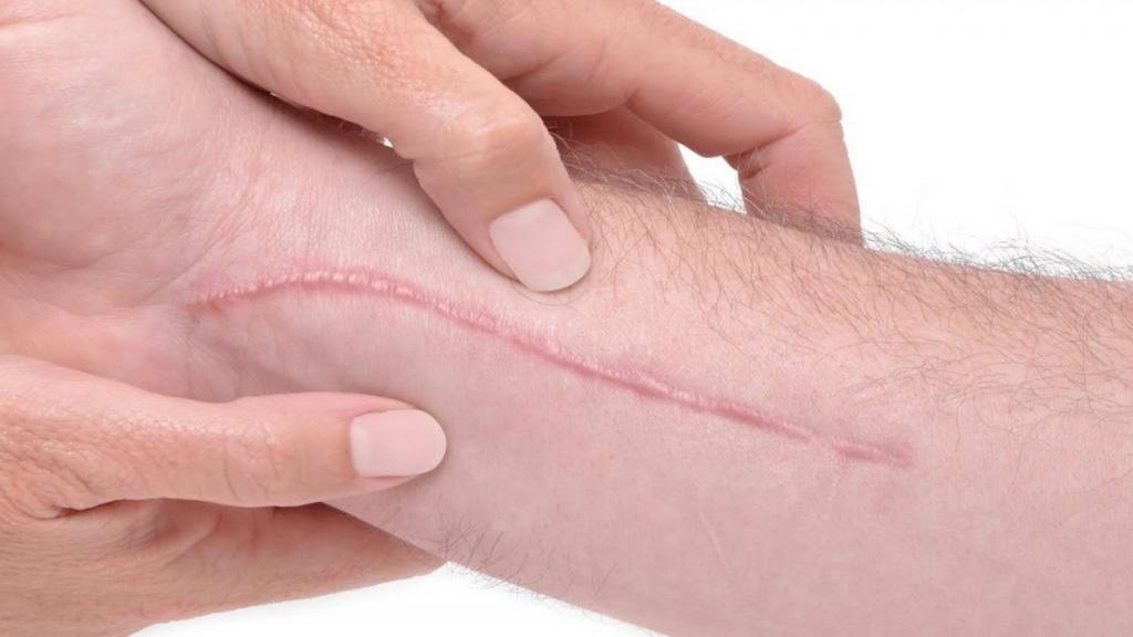 18 درمان خانگی و طبیعی کلوئید (گوشت اضافه) جای زخم + علل و روش پیشگیری آن