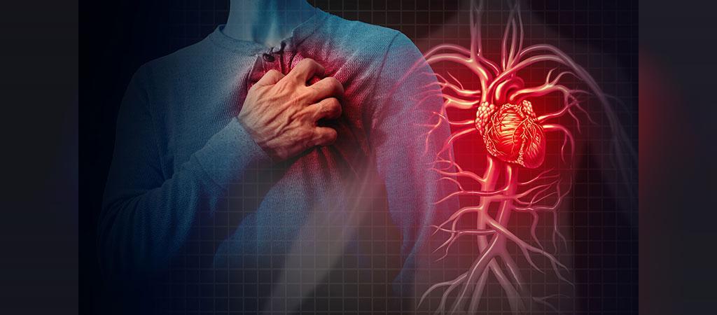 عوامل خطر، عوارض، آزمایش ها و درمان سکته (حمله) قلبی چیست