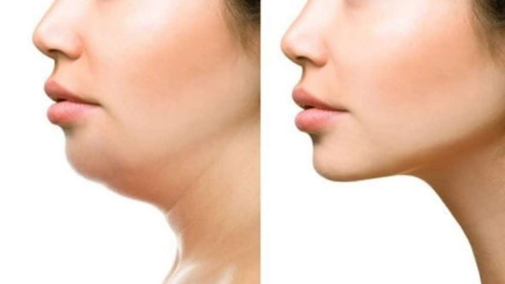 7 روش موثر برای لاغری صورت و داشتن صورت عضلانی
