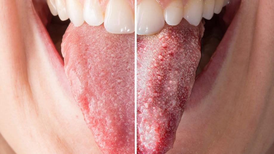 برفک دهان؛ دلایل و علائم بروز برفک دهان در کودکان و بزرگسالان
