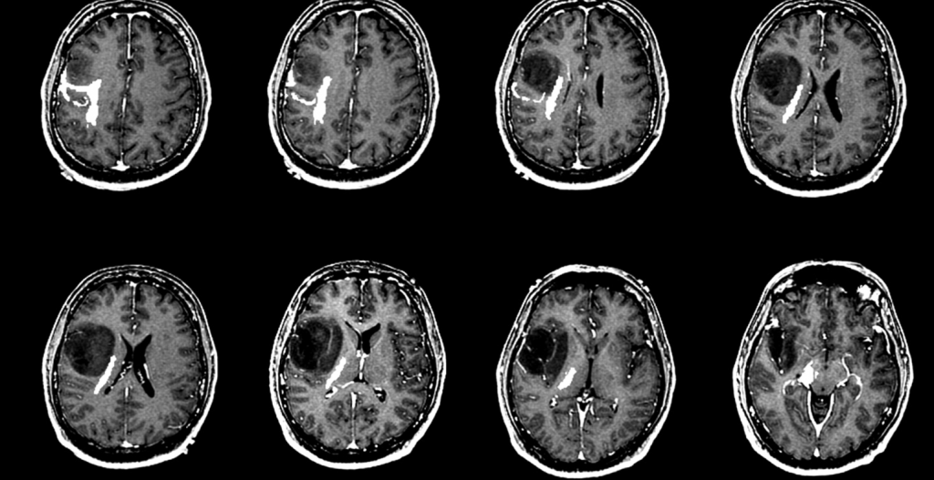 شایع ترین علائم تومر مغزی