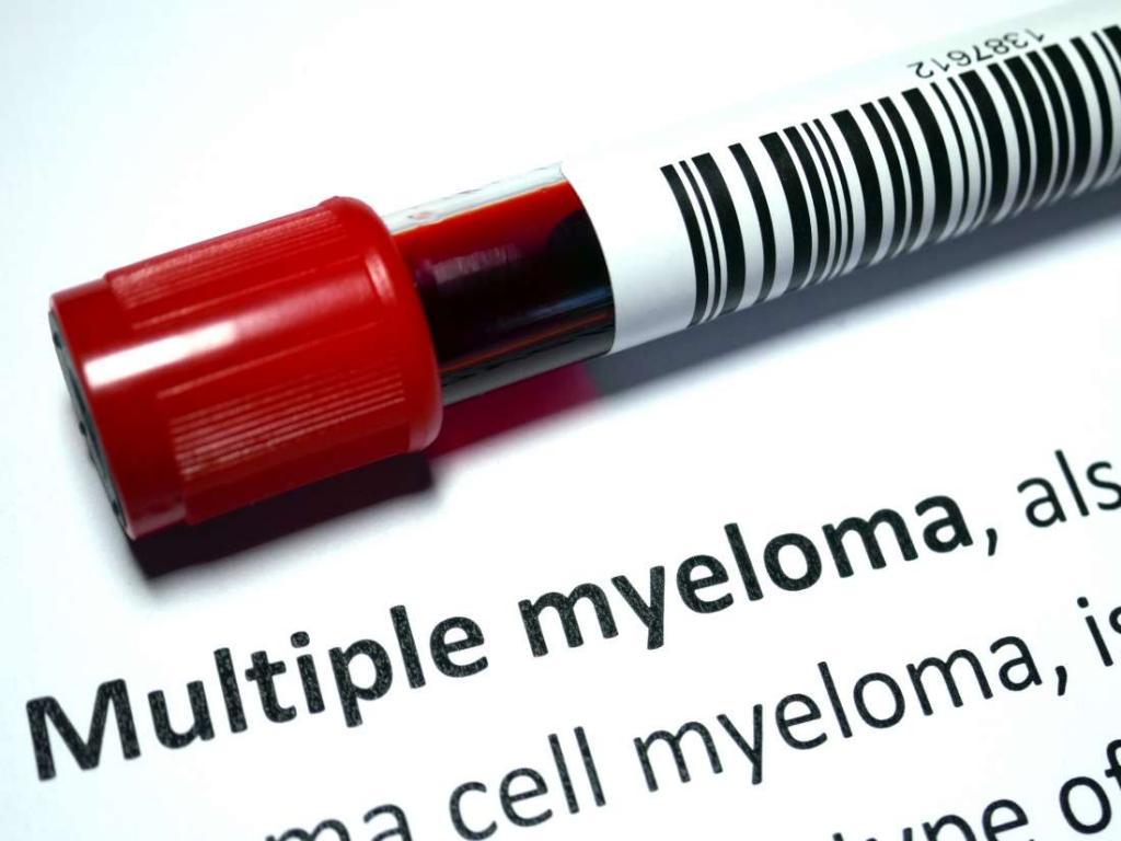 علائم و راه تشخیص سرطان مولتیپل میلوما