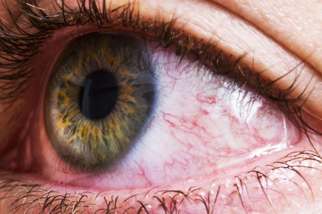 عوامل موثر در فلوتر چشم