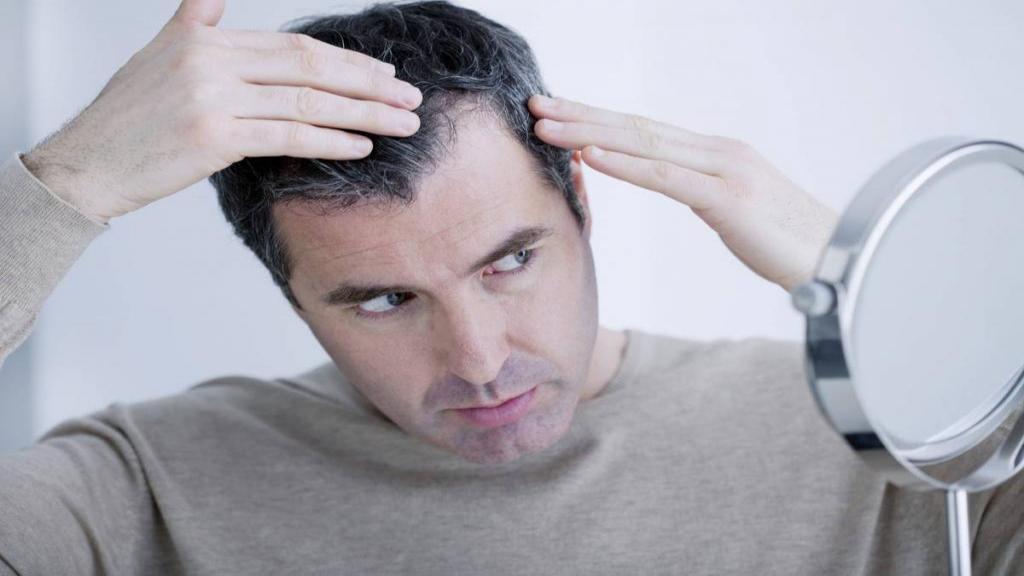 6 علت شایع سفیدی زودرس موها در سن جوانی و راه جلوگیری از آن