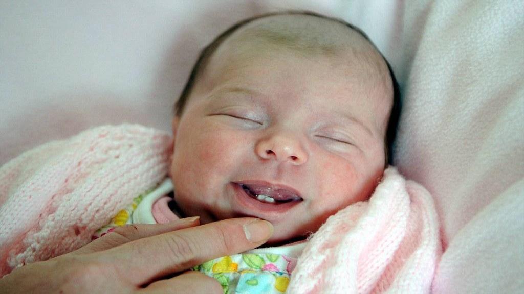 تولد نوزاد با دندان ناتال: انواع، دلایل، عوارض و درمان آن