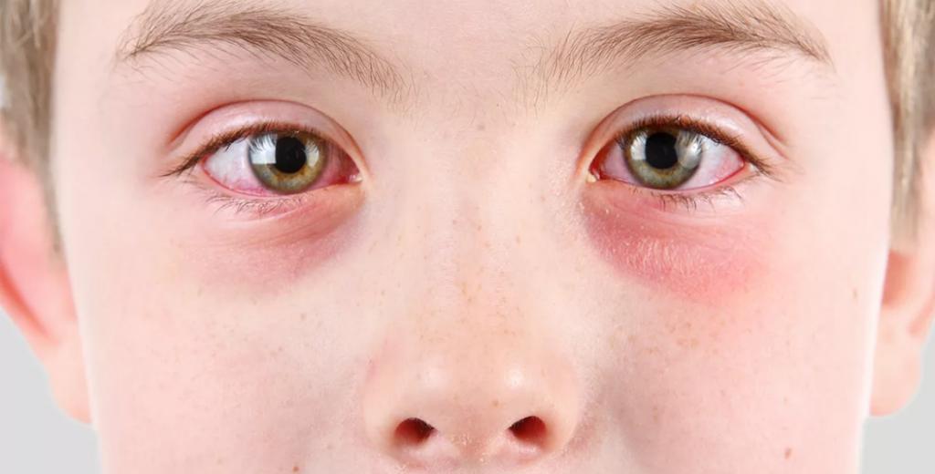 عوارض استفاده از مواد شوینده توسط کودکان