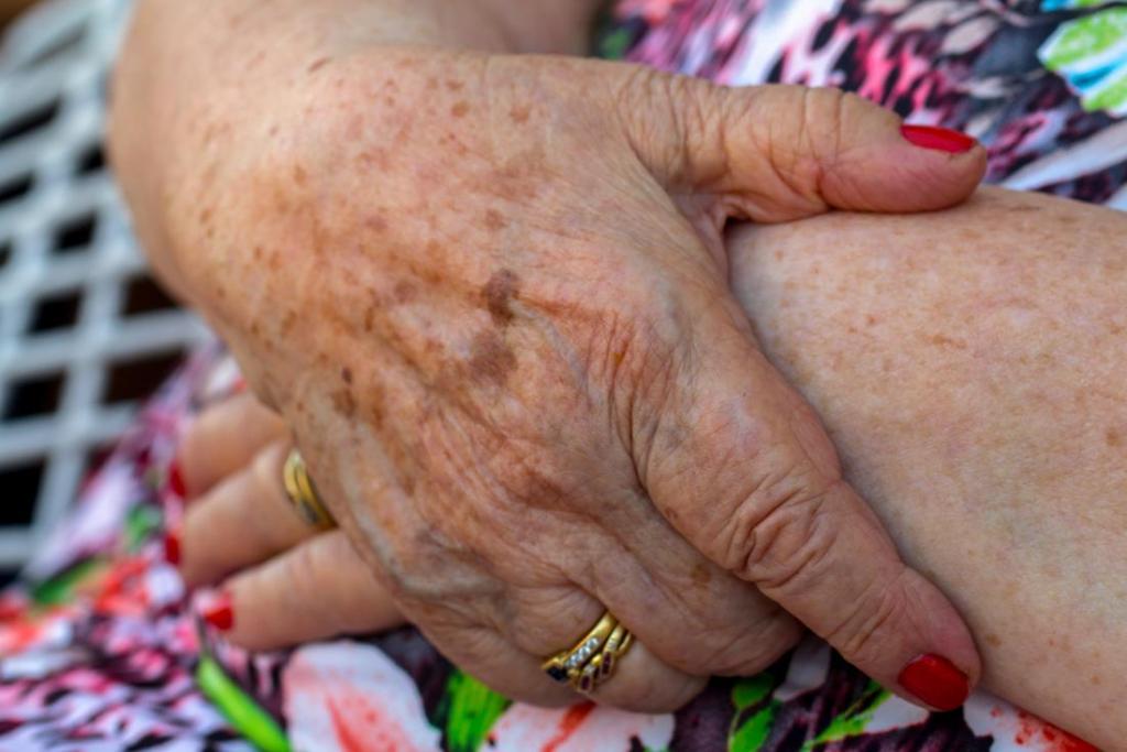 علائم لکه های قهوه ای روی پوست