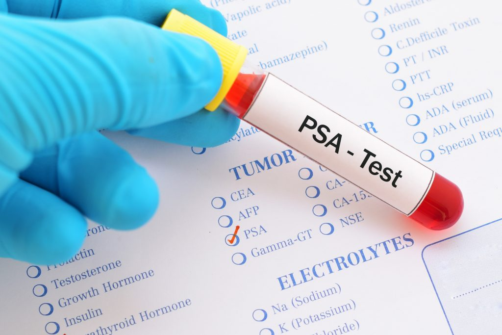 برای تشخیص سرطان پرستات  PSA تست