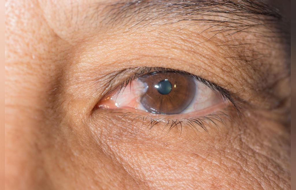 ناخنک چشم چیست؟