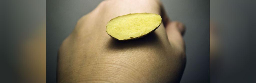 درمان زخم سفید با زنجبیل