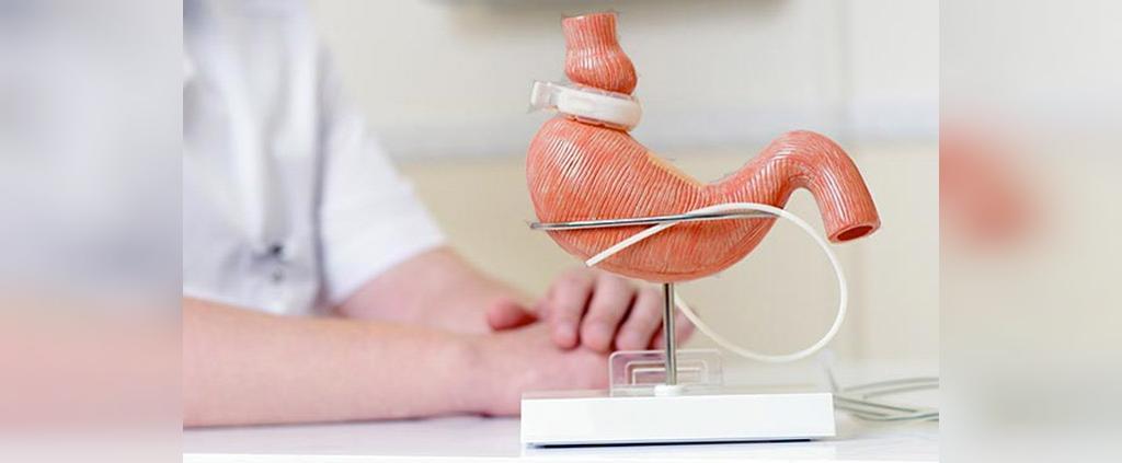 نکات کلیدی درباره جراحی حلقه  معده