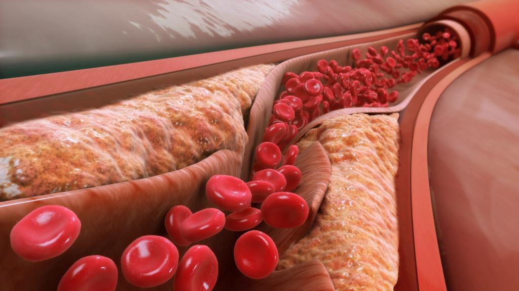 کلسترول خون چیست؟ علائم، علل و درمان کلسترول بالا کدام است؟