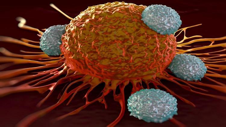 مراحل سرطان معده   راه های تشخیص سرطان معده