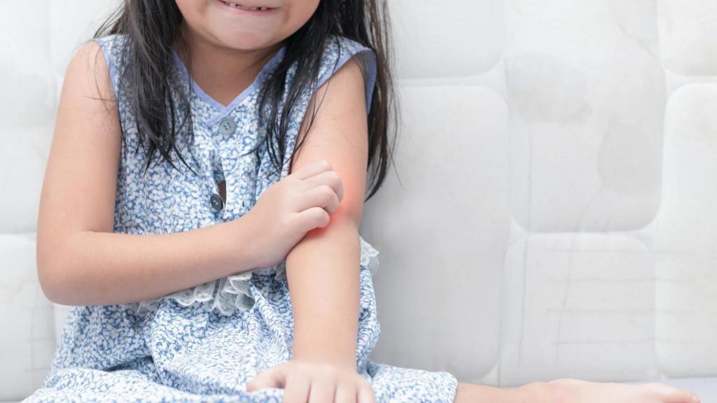 خارش پوست کودکان: انواع آلرژی های شایع پوستی در کودکان، علل و راه های درمان آن