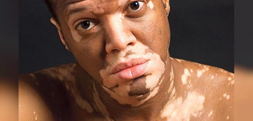 بیماری پوستی برص یا پیسی (ویتیلیگو) چیست و چرا به وجود می آید و آیا درمان دارد؟