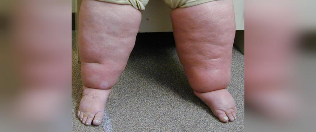 ورم، از علائم کمبود پروتئین