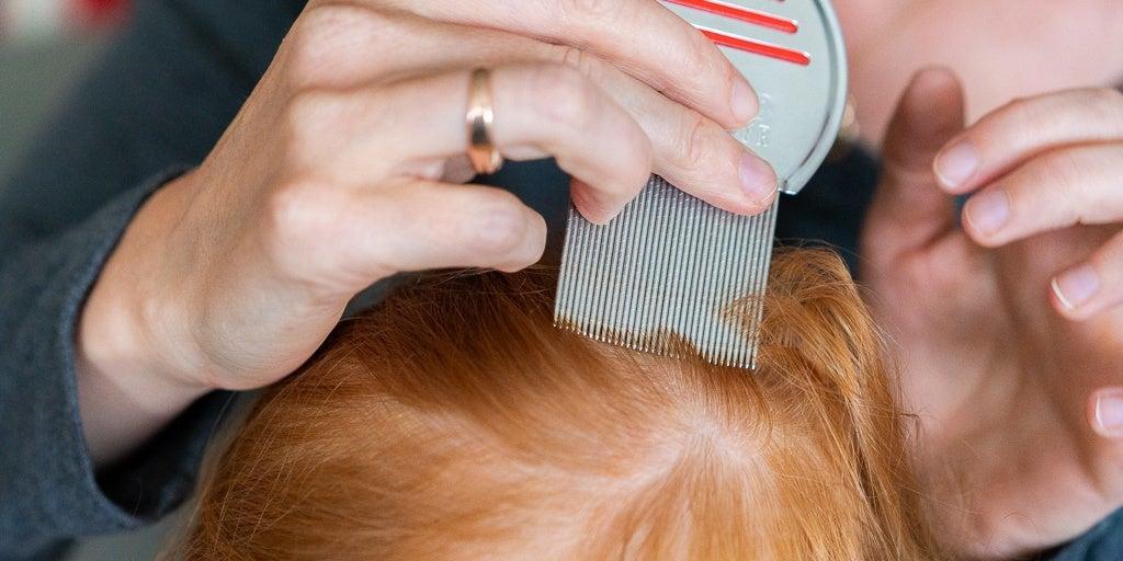 نحوه درمان عفونت شپش سر با استفاده از اسپند