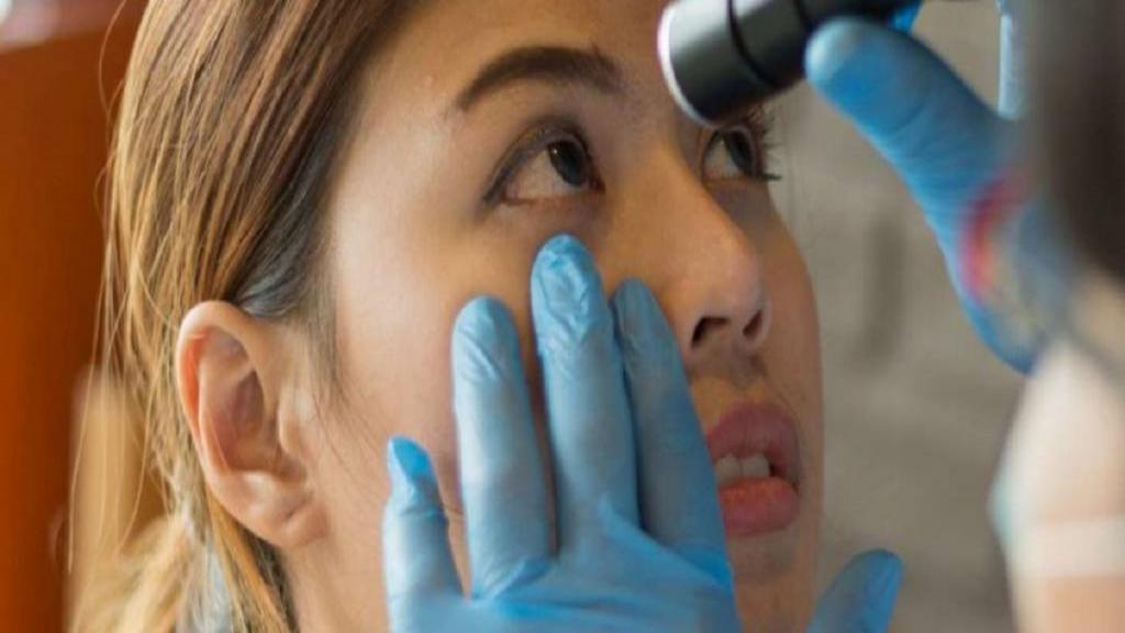 چگونه از شر زردی چشم ها خلاص شویم؟ + انواع زردی و علل آن