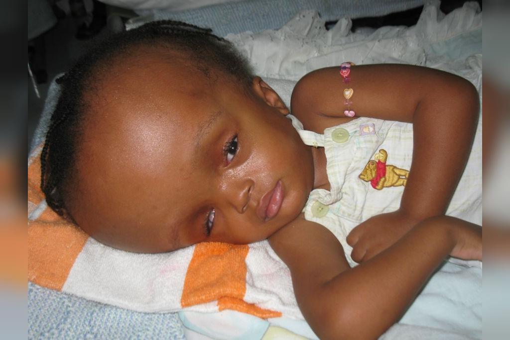 علائم هیدروسفالی مادرزادی (در بدو تولد)