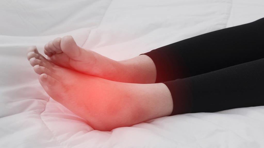 ورم پا؛ 9 روش درمان خانگی و طبیعی ورم پا + روش های جلوگیری و کاهش آن