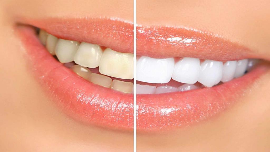 روش های خانگی و مؤثر از بین بردن جرم و رفع پلاک دندان