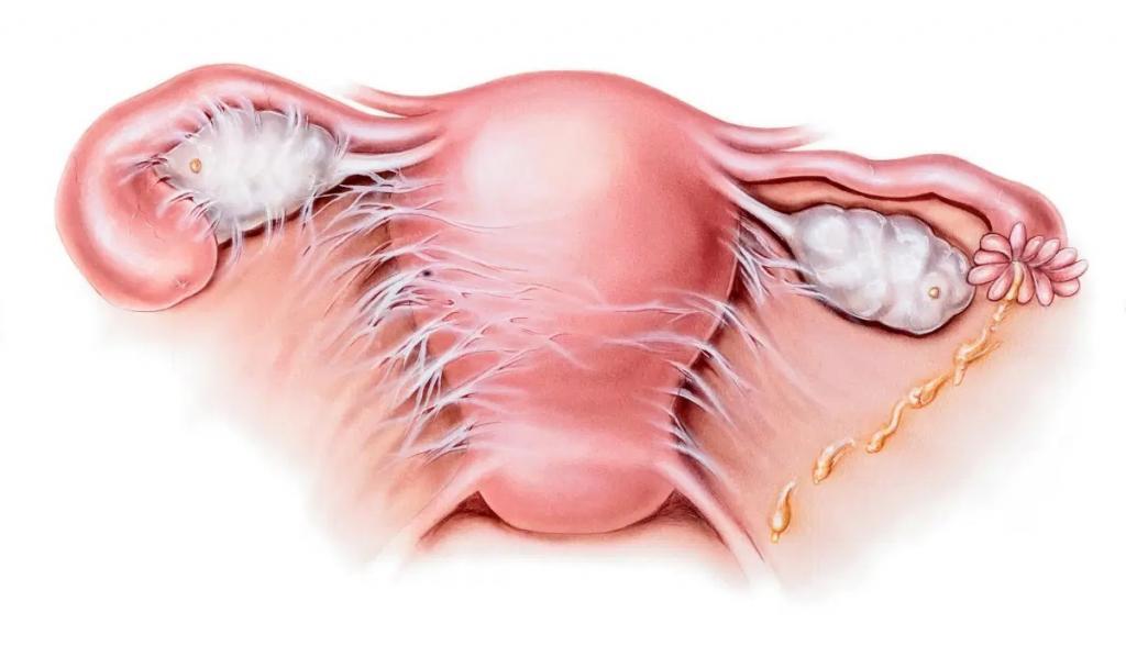 دلایل اصلی ترشحات زرد رنگ واژن در بارداری