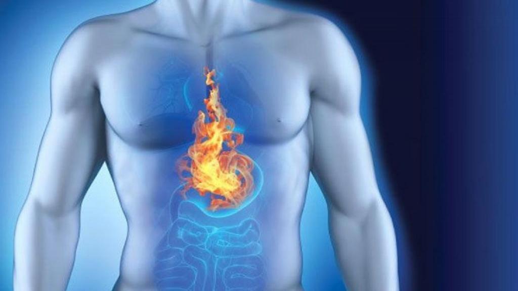 رفلاکس معده چیست؛ علائم، علت و درمان اسید معده به مری