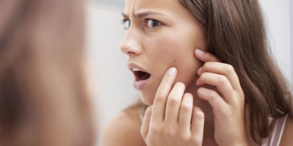 علل بروز لکه های تیره روی پوست