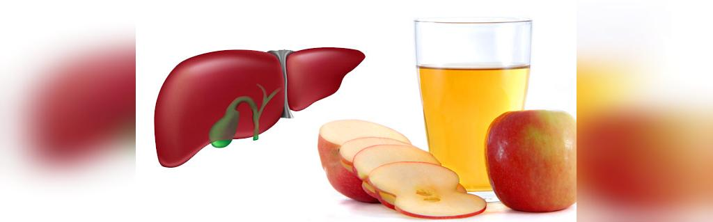 درمان کبد چرب با سرکه سیب