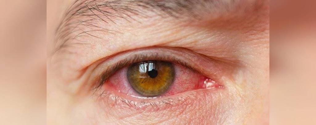 چشم خشک نشانه کمبود ویتامین آ