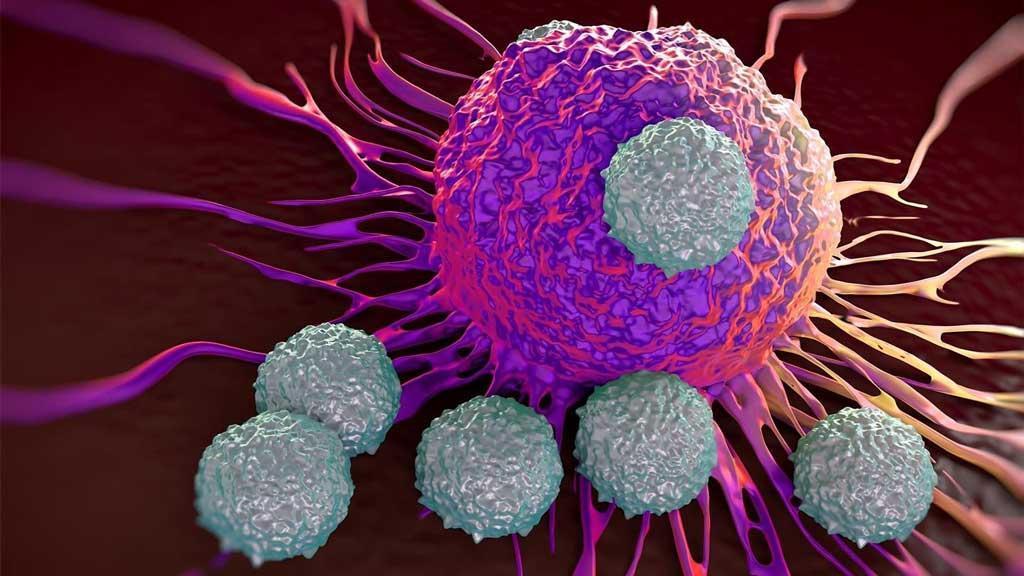 سرطان مولتیپل میلوما (Multiple myeloma) چیست: علل، علائم، روش تشخیص و درمان آن