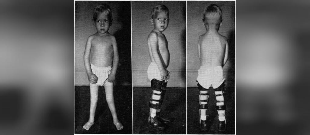 بهترین روش های درمان پای پرانتزی در کودکان