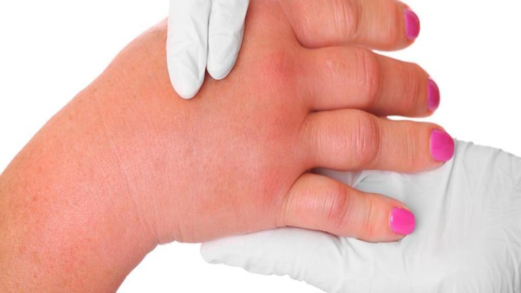 ورم انگشتان دست؛ عوامل، علائم و راه های درمان