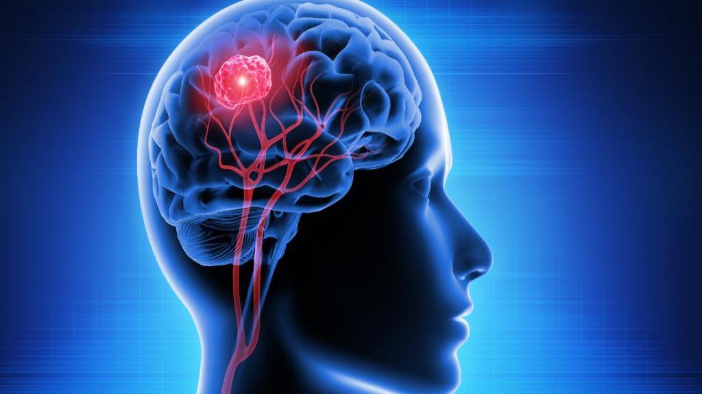 7 علامت هشدار دهنده در رابطه با تومور مغزی که باید از آن مطلع باشید!