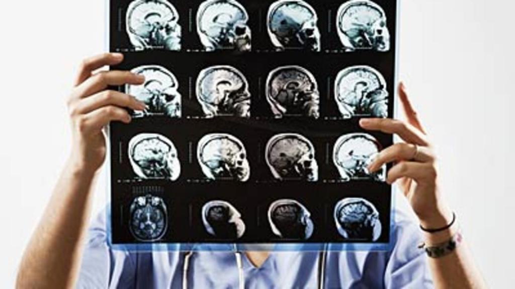 روش تشخیص بیماری مولتیپل اسکلروز یا ام اس