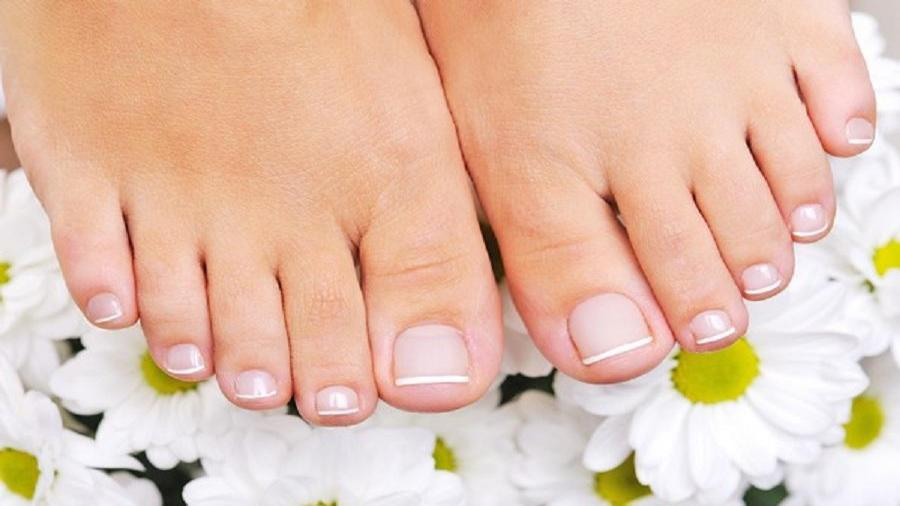 7 روش درمان خانگی بیماری قارچ انگشتان پا (سندروم پای ورزشکار)