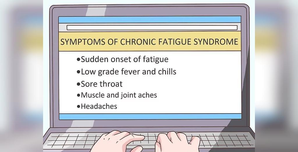 علائم سندرم خستگی مزمن