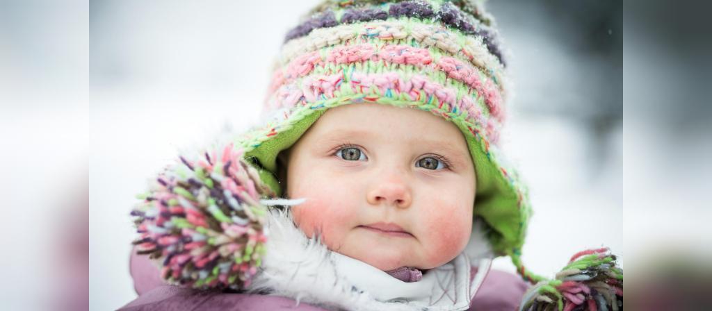 سرمازدگی پوست در نوزادان و کودکان نوپا