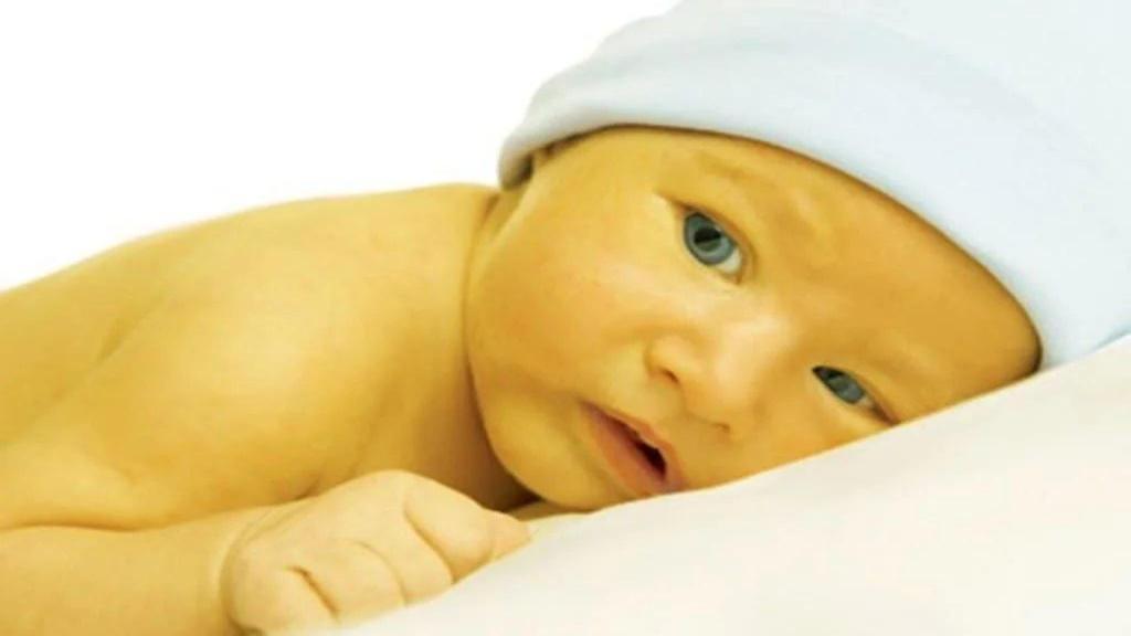 علت زردی نوزاد + جلوگیری و درمان زردی نوزادان در طب سنتی