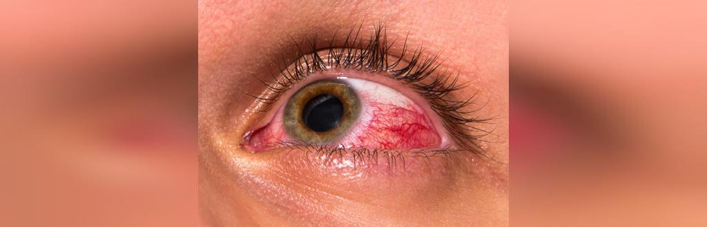 قرمز شدن چشمها و اعتیاد