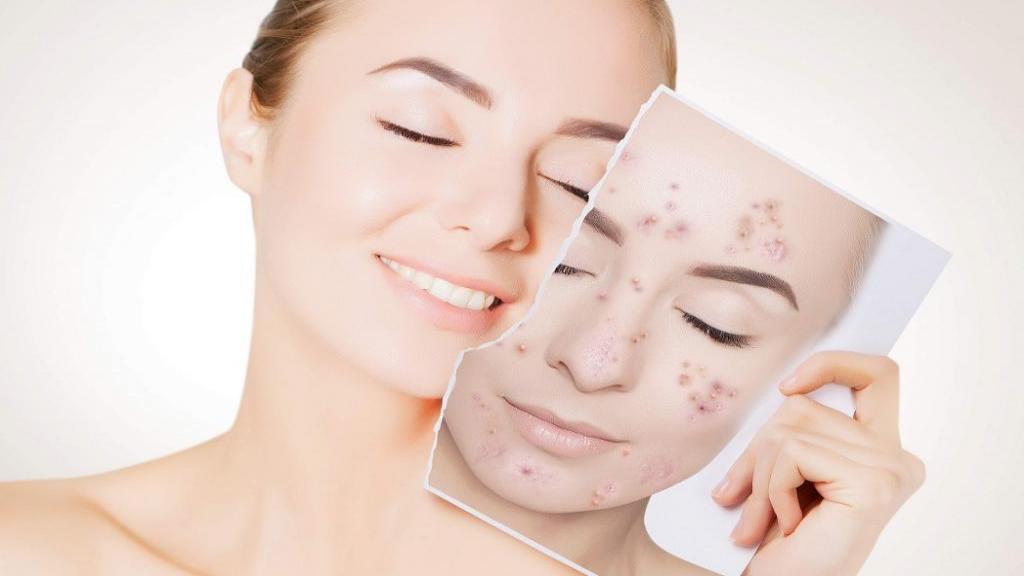 درمان سریع جوش صورت با 20 روش و ماسک خانگی برای رفع جوش